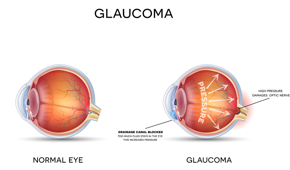 diagram of normal eye vs eye with glaucoma showing increased pressure and drainage canal blocked
